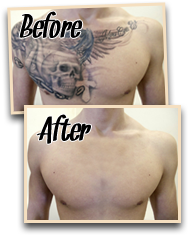 before after natural tattoo removal 2