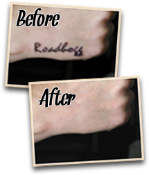 before after natural tattoo removal 3