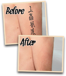 before after natural tattoo removal