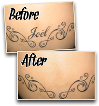 before after painless tattoo removal 2