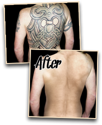 before after painless tattoo removal 3