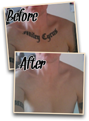 before after painless tattoo removal